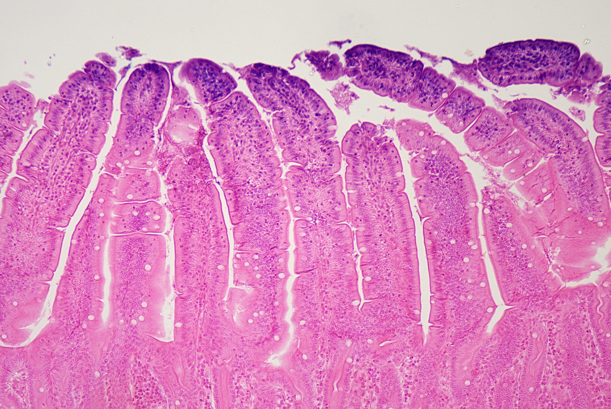 duodenal cells